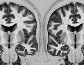 Beyin travması şiddete yöneltiyor