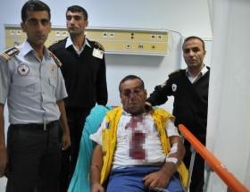 Ambulanstan indirip dövdüler