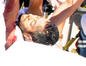Bodrumda silahlı çatışma: 2 ölü, 4 yaralı