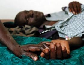 85 bin HIV taşıyıcısı tedavi olamıyor