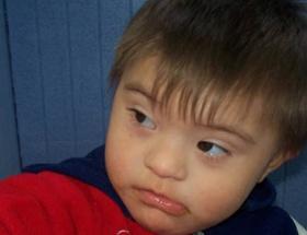 Erken doğumda otizm riski