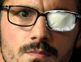 Gattuso kör oldu