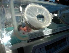 10 günlük bebeğe stent