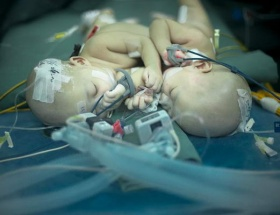 43 günlük yapışık ikizler ayrıldı