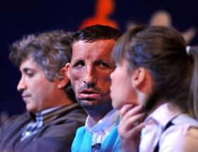 İlk yüz nakli İspanyada yarışacak