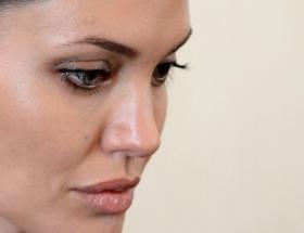 Jolie hangi Türk doktorla bir otelde buluştu?
