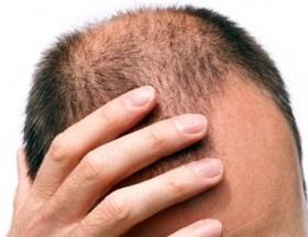 Saç dökülmesi kalp krizi habercisi